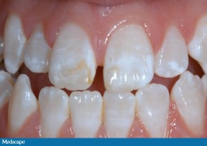 hypomineralization - white spots on teeth