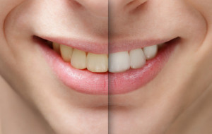what causes discolored teeth