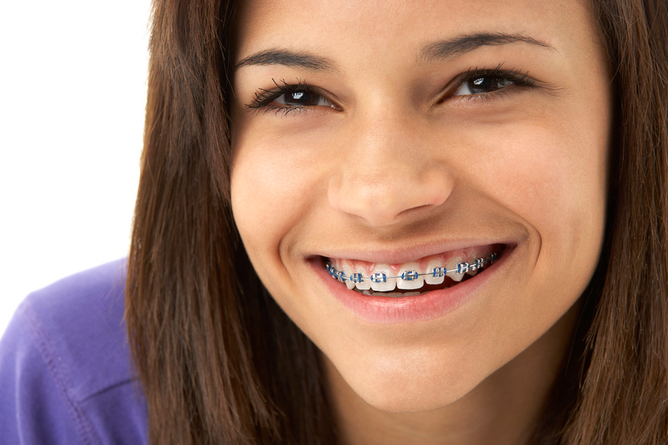 How To Get Rid Of White Spots On Teeth After Braces